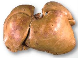 3. Lipidosis